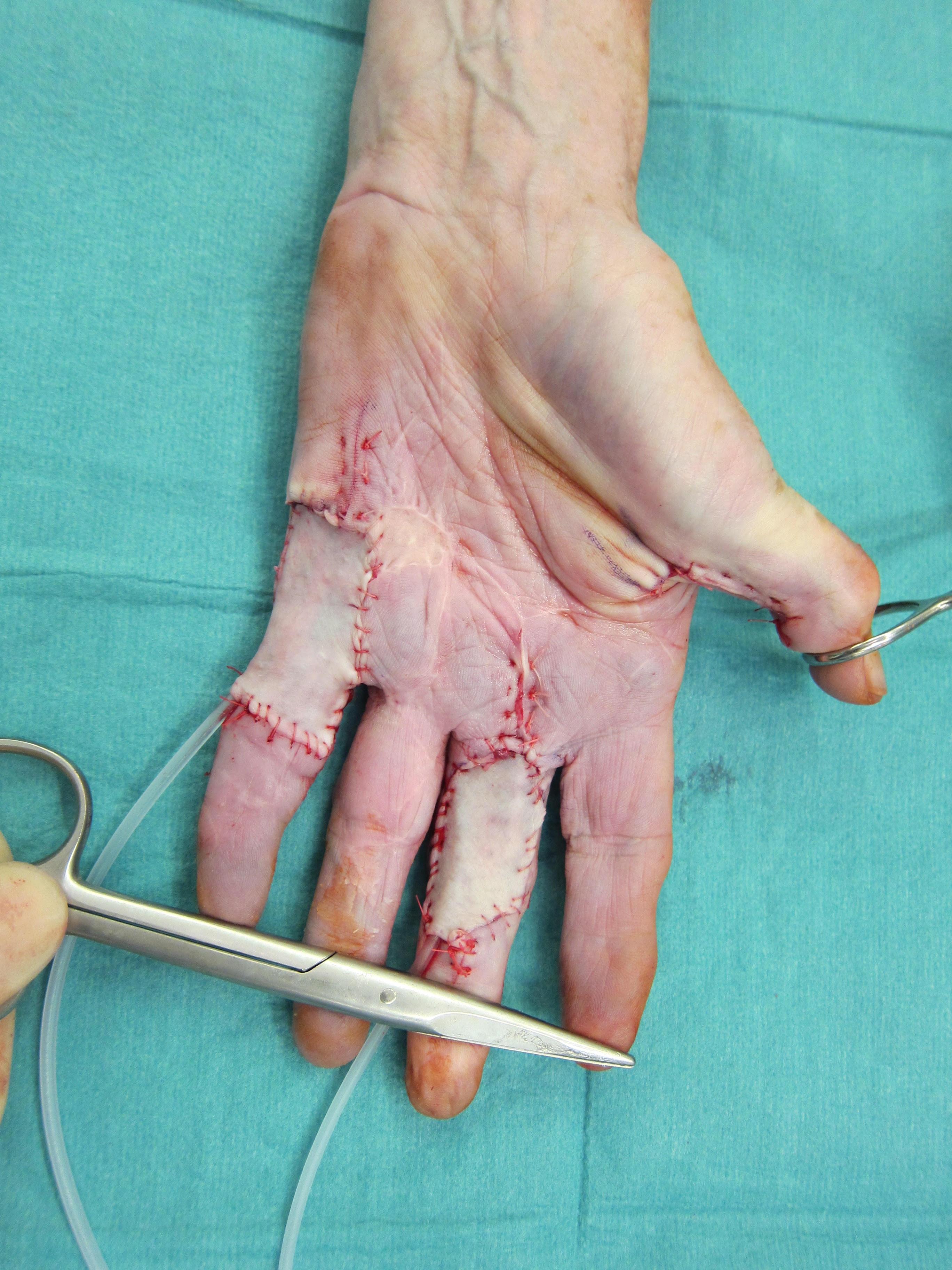Dupuytren's Contracture | Essex Plastic Surgery | Adam Sierakowski