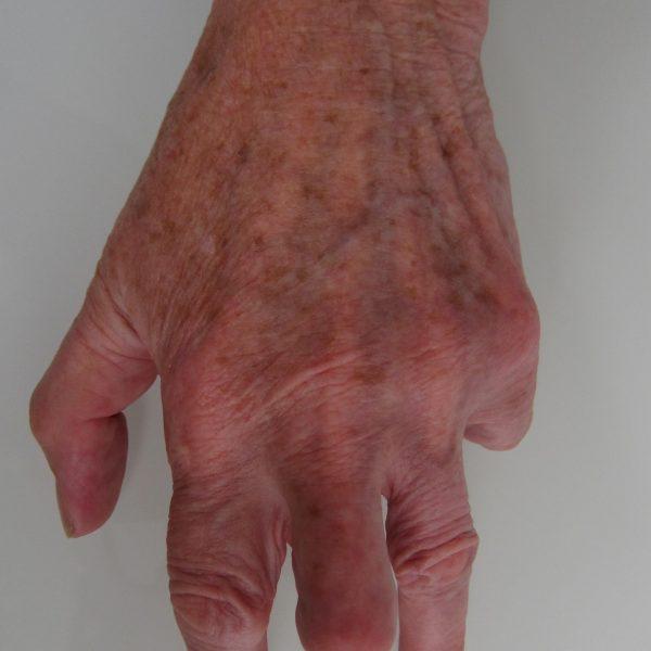 Dupuytren's Disease
