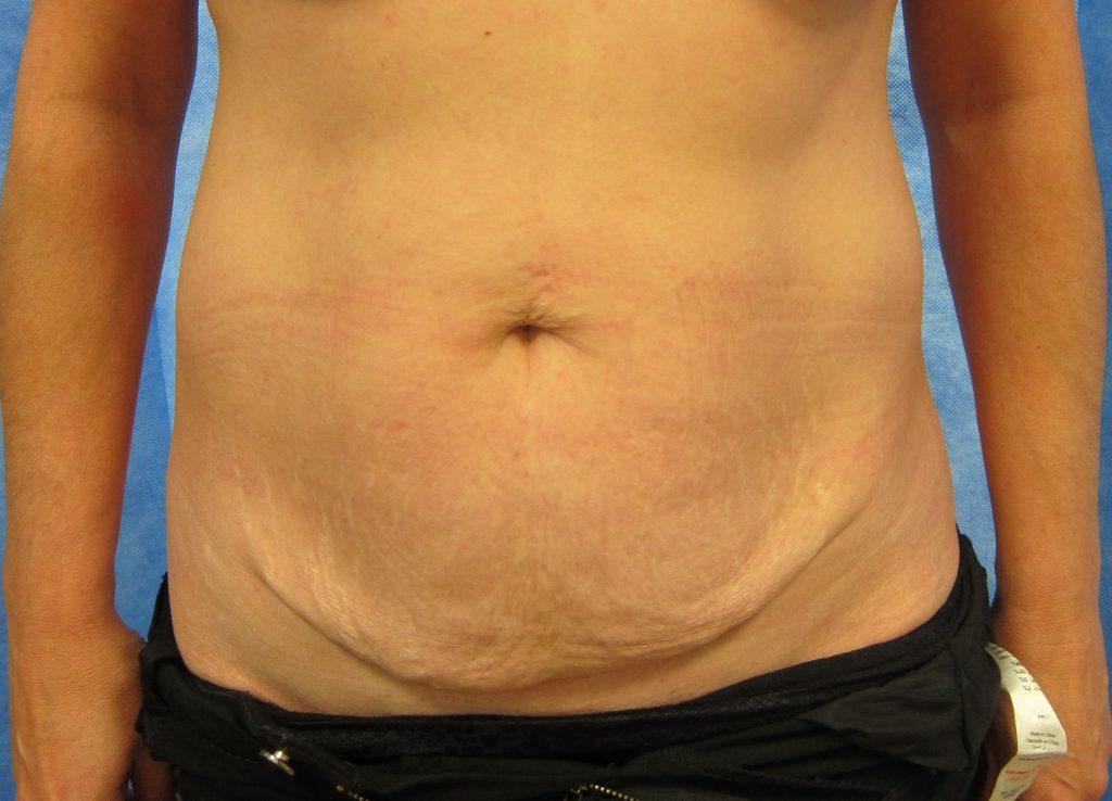 Before abdominoplasty surgery image