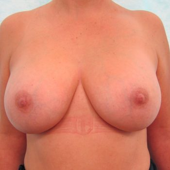 6 Weeks After Breast Enlargement