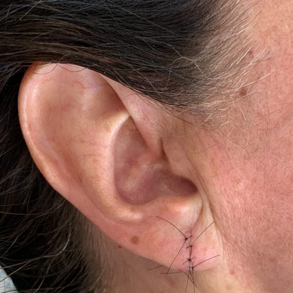 Immediately after split earlobe repair