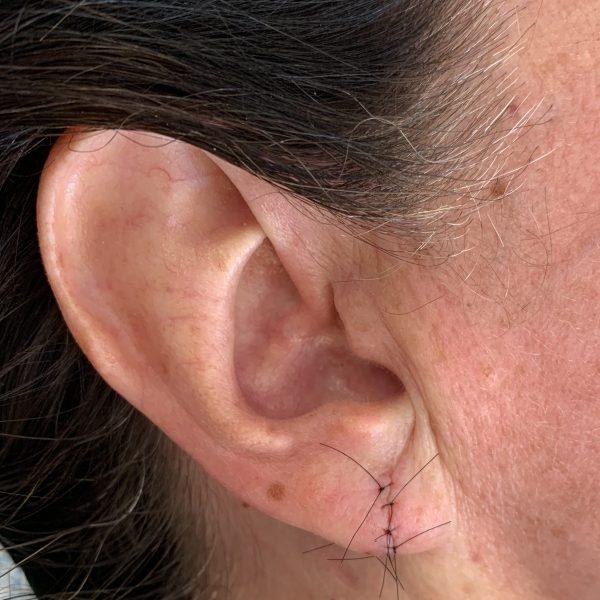 Immediately after split earlobe repair