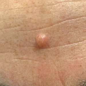 benign intradermal naevus on the forehead before removal