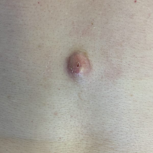 Epidermoid cyst before removal