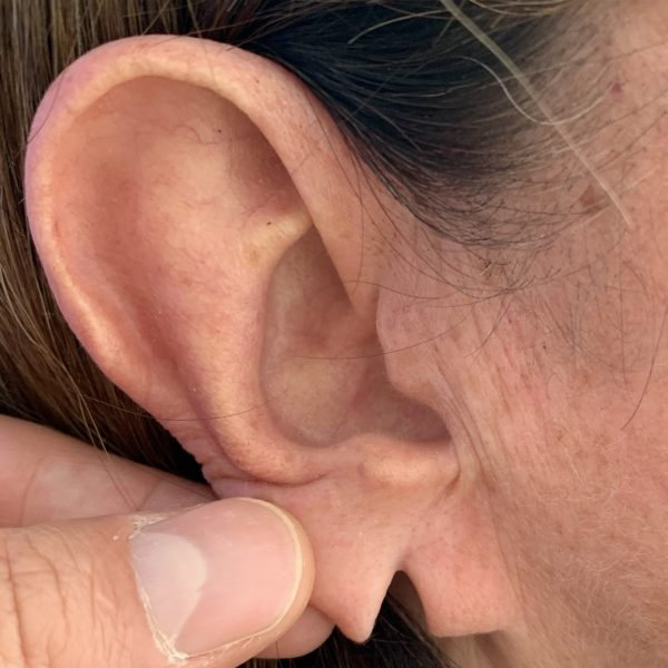 Split earlobe before repair