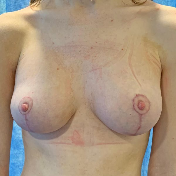 Breast Uplift After Front