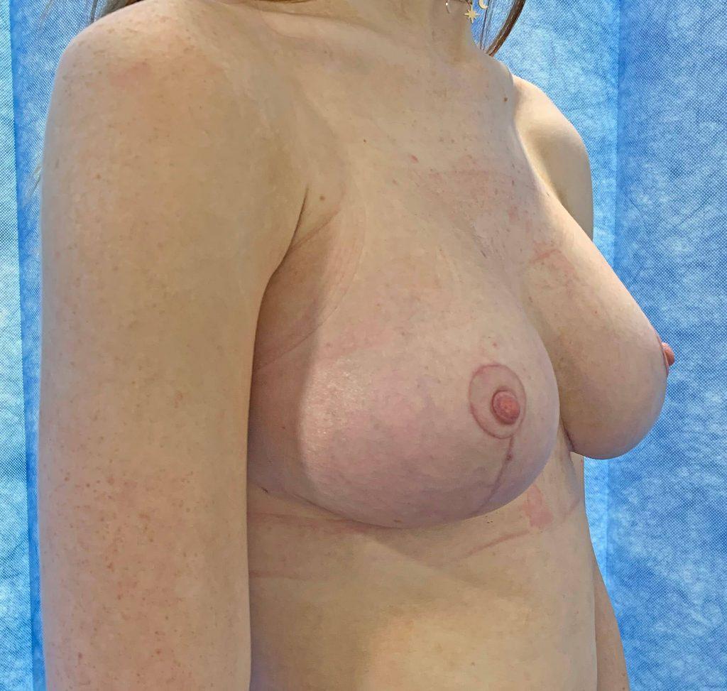 Breast Uplift After Side