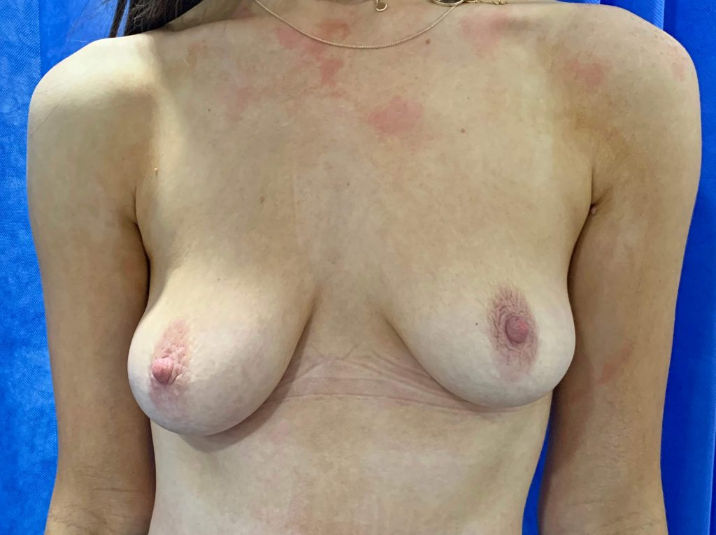 Breast Uplift Before front