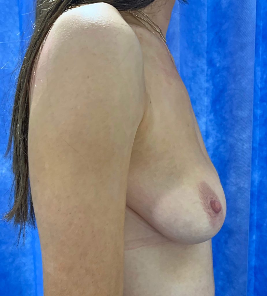 Breast Uplift Before Side