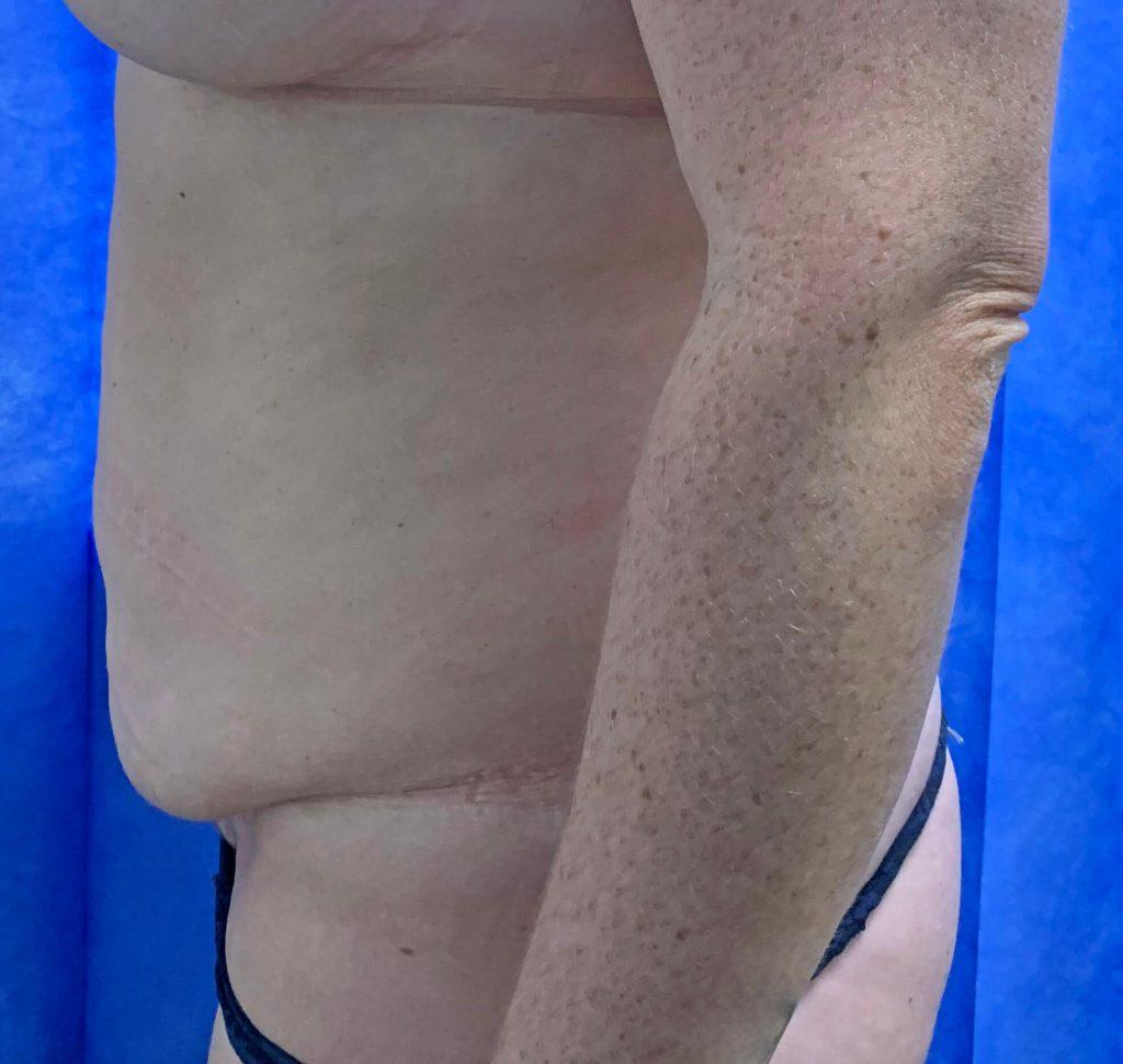 Abdominoplasty Before Side