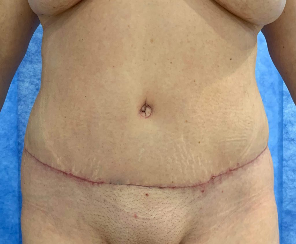 Abdominoplasty After Front