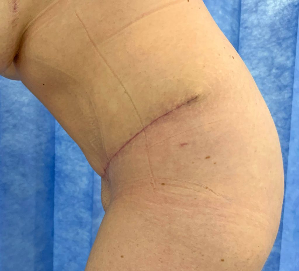 Abdominoplasty After Bent Over
