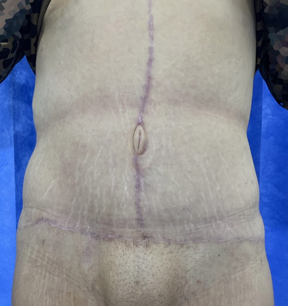 8 months after Fleur de Lis Abdominoplasty surgery